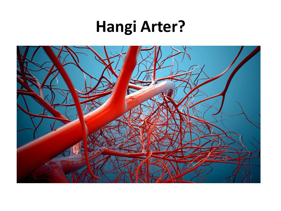 Hangi Arter?
