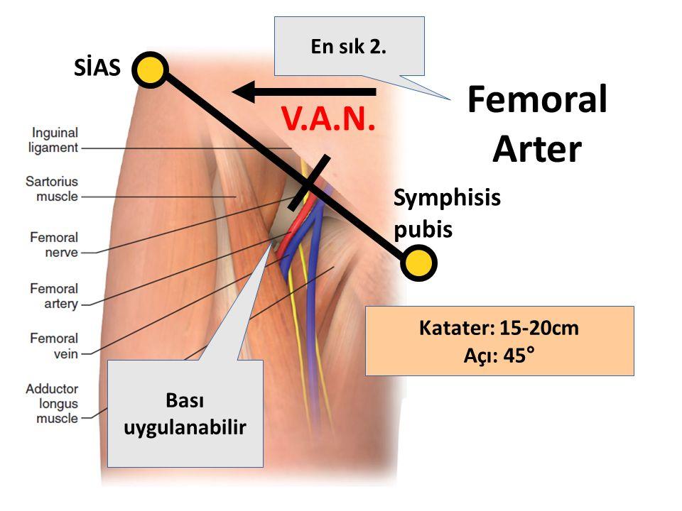 Femoral Arter SİAS Symphisis pubis Bası uygulanabilir En sık 2. V.A.N. Katater: 15-20cm Açı: 45°