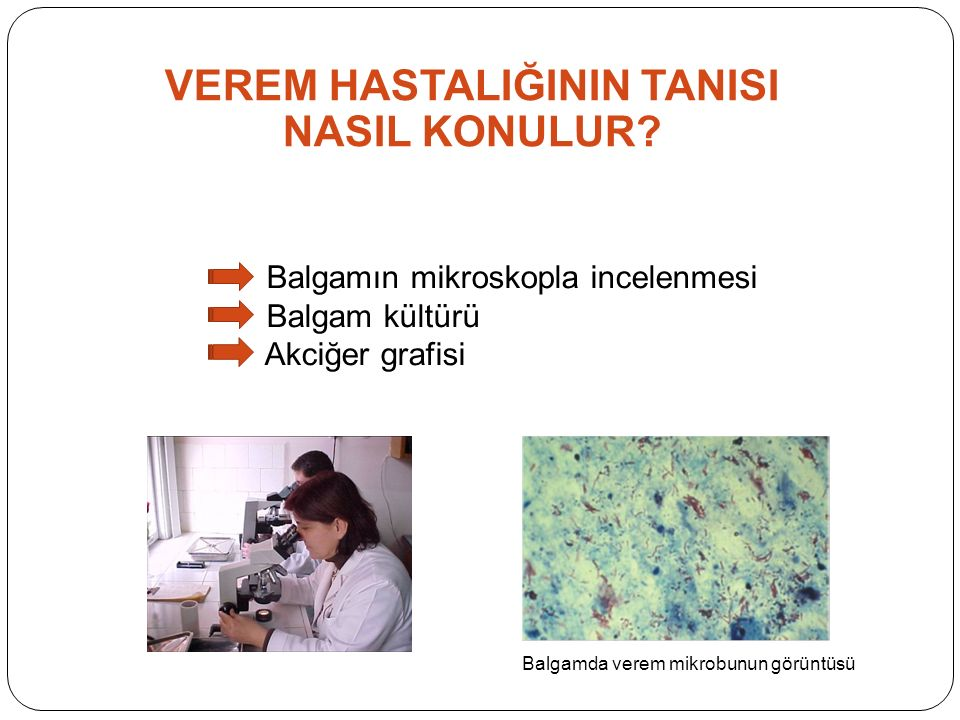 Balgamda verem mikrobunun görüntüsü VEREM HASTALIĞININ TANISI NASIL KONULUR.