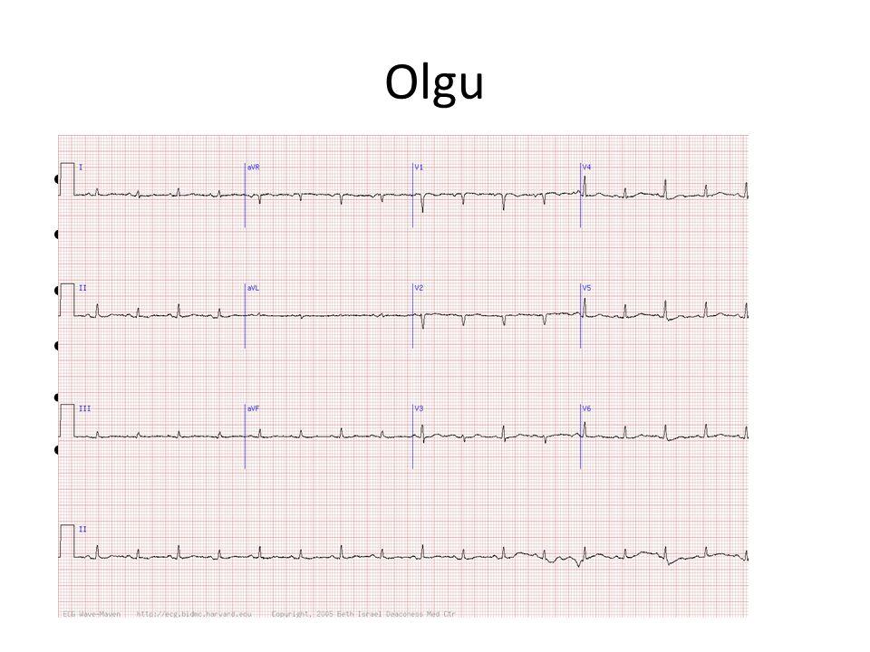 Olgu 68 yaş kadın meme ca Giderek artan nefes darlığı Ortopne,efor dispne Solunum sesleri azalmış,derinden KA.115,SS 29, TA 90/65, Sats 88% EKG?