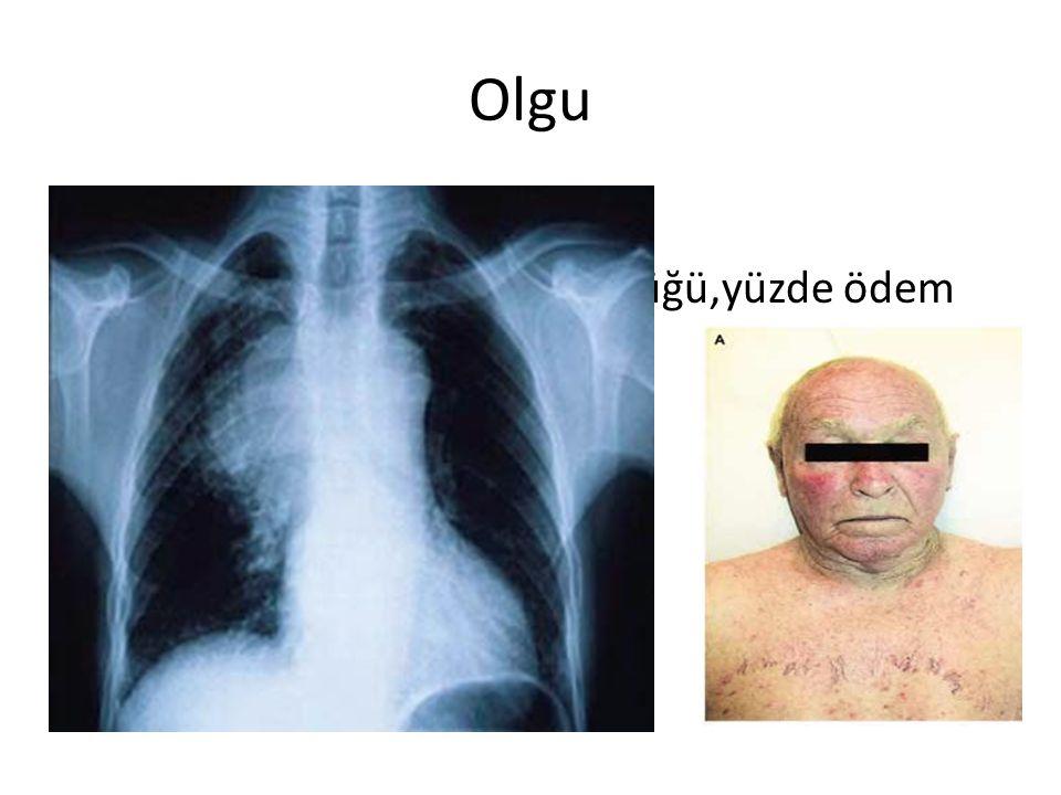 Olgu 48 yaş erkek akciğer kanseri Artan nefes darlığı,yutma güçlüğü,yüzde ödem şikayeti ile başvurdu. KA.105,SS 22, TA 150/95, Sats 93% TANI? TETKİK?