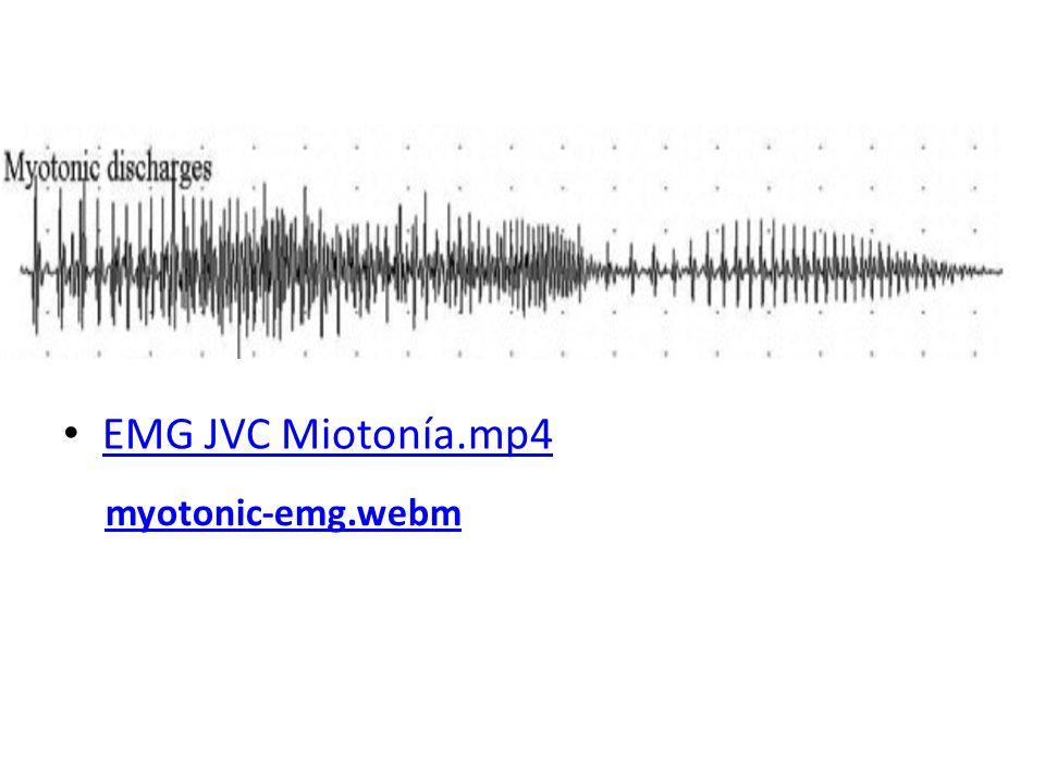 EMG JVC Miotonía.mp4 myotonic-emg.webm