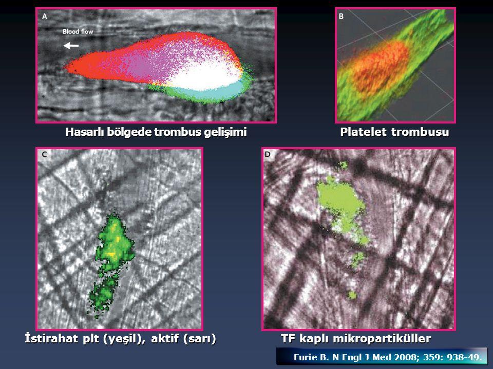 Hasarlı bölgede trombus gelişimi Platelet trombusu İstirahat plt (yeşil), aktif (sarı) TF kaplı mikropartiküller Furie B. N Engl J Med 2008; 359: 938-