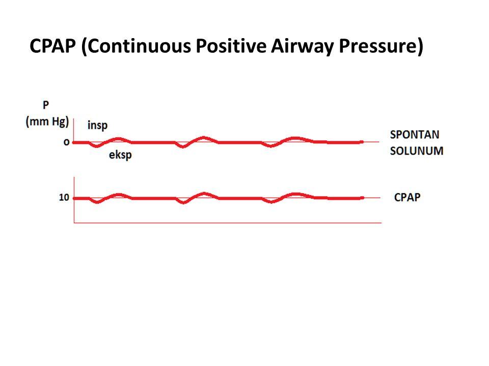 CPAP (Continuous Positive Airway Pressure)