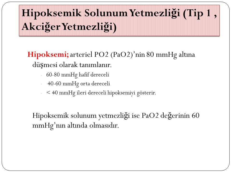 Hipoksemik Solunum Yetmezli ğ i (Tip 1, Akci ğ er Yetmezli ğ i) Hipoksemi; arteriel PO2 (PaO2)'nin 80 mmHg altına dü ş mesi olarak tanımlanır. - 60-80