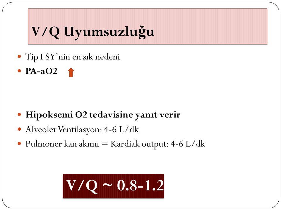 V/Q Uyumsuzlu ğ u Tip I SY'nin en sık nedeni PA-aO2 Hipoksemi O2 tedavisine yanıt verir Alveoler Ventilasyon: 4-6 L/dk Pulmoner kan akımı = Kardiak ou