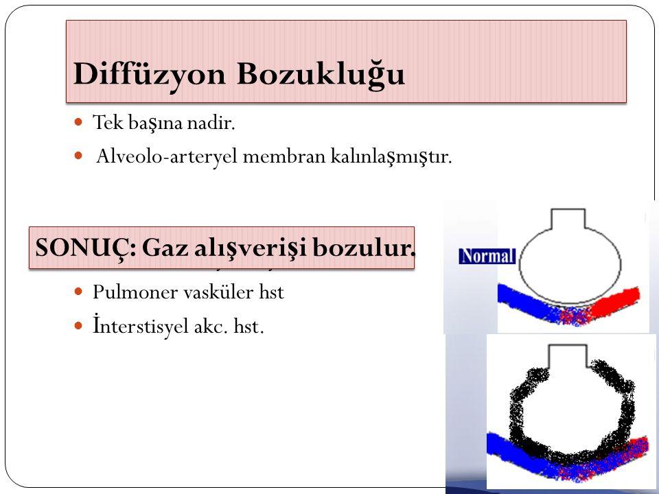 Diffüzyon Bozuklu ğ u Tek ba ş ına nadir. Alveolo-arteryel membran kalınla ş mı ş tır. O2 tedavisine yanıt iyi Pulmoner vasküler hst İ nterstisyel akc