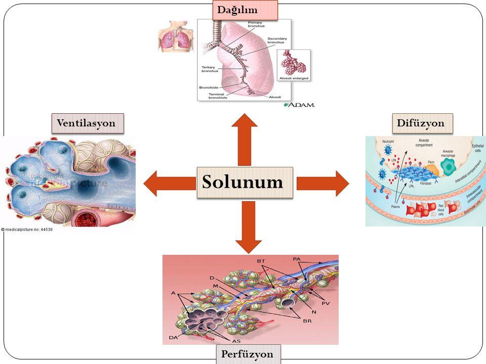 Perioperatif Tip Solunum Yetmezli ğ i (Tip 3) Temel Mekanizma: Atelektazi Üst abdominal cerrahide ilk 24 saatte VC % 50 azalır ve 7.