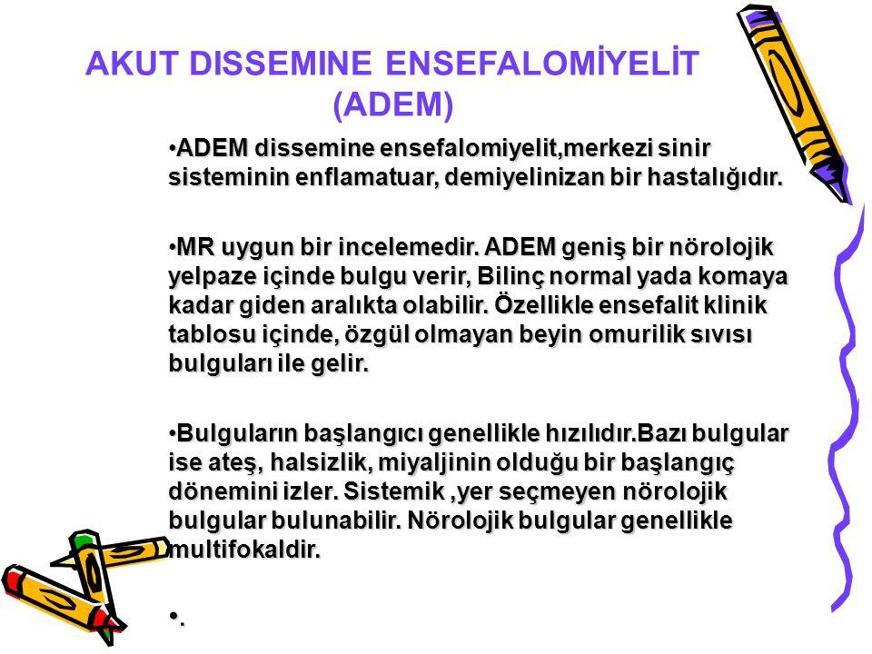 AKUT DISSEMINE ENSEFALOMİYELİT (ADEM) ADEM dissemine ensefalomiyelit,merkezi sinir sisteminin enflamatuar, demiyelinizan bir hastalığıdır.ADEM dissemine ensefalomiyelit,merkezi sinir sisteminin enflamatuar, demiyelinizan bir hastalığıdır.