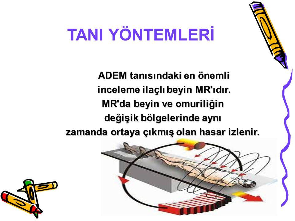 TANI YÖNTEMLERİ ADEM tanısındaki en önemli ADEM tanısındaki en önemli inceleme ilaçlı beyin MR'ıdır. inceleme ilaçlı beyin MR'ıdır. MR'da beyin ve omu
