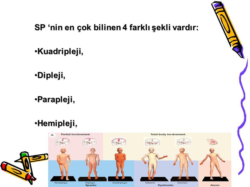SP 'nin en çok bilinen 4 farklı şekli vardır: Kuadripleji,Kuadripleji, Dipleji,Dipleji, Parapleji,Parapleji, Hemipleji,Hemipleji,