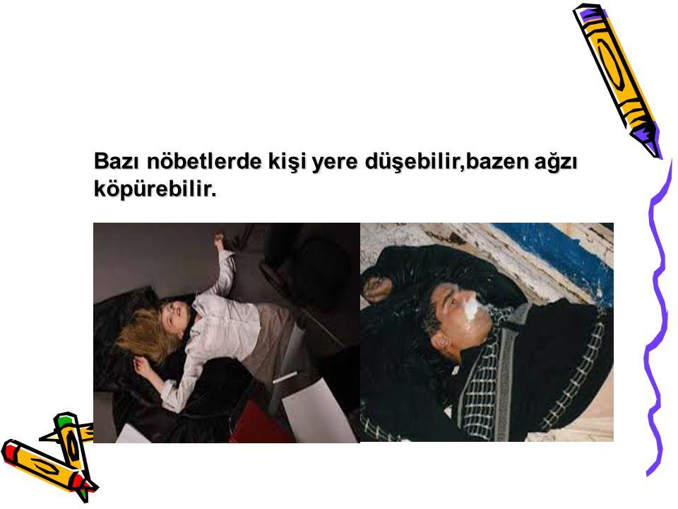 SEREBRAL PALSİ (CP)