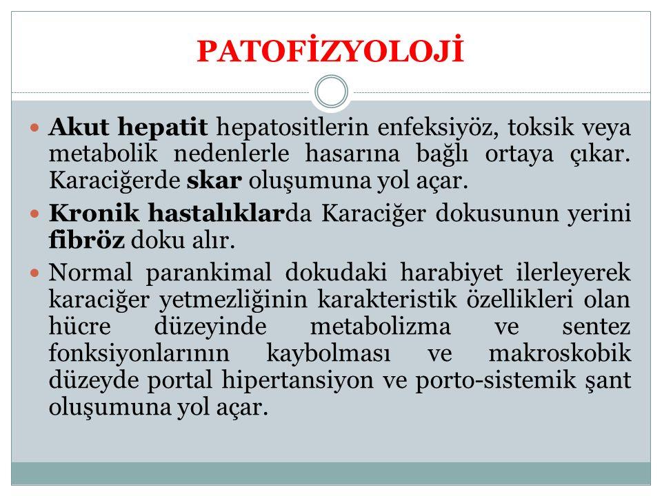 PATOFİZYOLOJİ Akut hepatit hepatositlerin enfeksiyöz, toksik veya metabolik nedenlerle hasarına bağlı ortaya çıkar. Karaciğerde skar oluşumuna yol aça