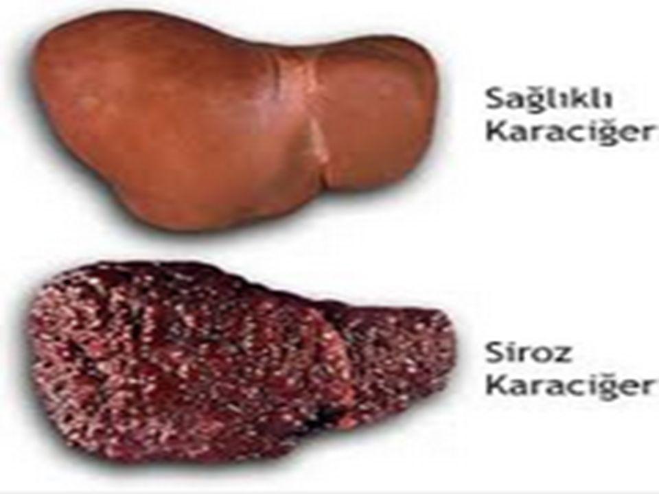 Siroz'un diğer nedenleri Otoimmun hepatit ( karaciğer dokusuna karşı gelişen otoimmun hasar sonucu gelişir ) Primer biliyer siroz (karaciğer içi safra yolları ve karaciğer dokusunun yıkımı vardır) Steatohepatit (karaciğer yağlanması) Hemokromatoz (karaciğer ve diğer organlarda demir birikimi ile seyreder) Kimyasal maddeler ve karaciğere ciddi zarar veren bazı ilaçlar (metotreksat, INH gibi) Primer sklerozan kolanjit (safra yollarının hasarı ile gider) Karaciğerin damarsal anormallikleri Konjestif kalp yetmezliği Wilson hastalığı (karaciğer ve diğer organlarda bakır birikimi hastalığa neden olur)