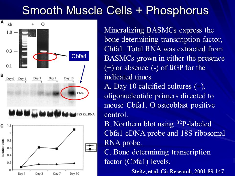 Smooth Muscle Cells + Phosphorus Mineralizing BASMCs express the bone determining transcription factor, Cbfa1. Total RNA was extracted from BASMCs gro