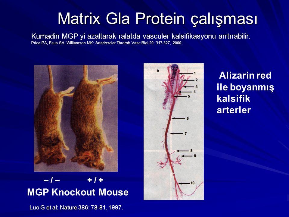 Matrix Gla Protein çalışması + / +– / – MGP Knockout Mouse Alizarin red ile boyanmış kalsifik arterler Kumadin MGP yi azaltarak ralatda vasculer kalsifikasyonu arrtırabilir.