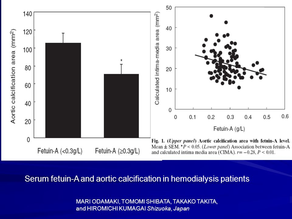 Serum fetuin-A and aortic calcification in hemodialysis patients MARI ODAMAKI, TOMOMI SHIBATA, TAKAKO TAKITA, and HIROMICHI KUMAGAI Shizuoka, Japan