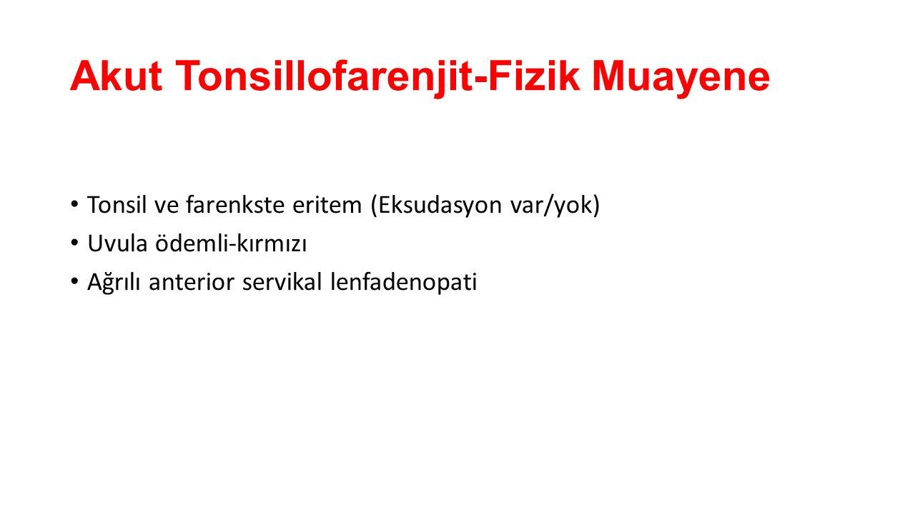Akut Tonsillofarenjit-Fizik Muayene Tonsil ve farenkste eritem (Eksudasyon var/yok) Uvula ödemli-kırmızı Ağrılı anterior servikal lenfadenopati