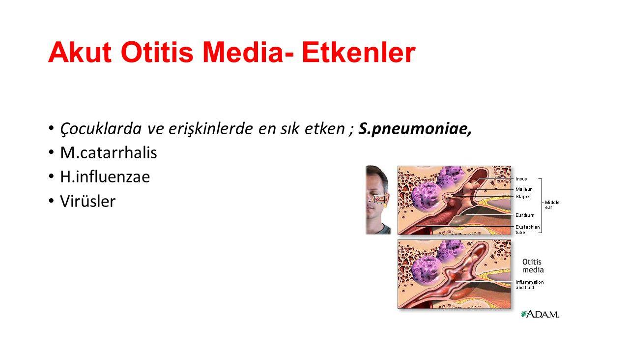 Akut Otitis Media- Etkenler Çocuklarda ve erişkinlerde en sık etken ; S.pneumoniae, M.catarrhalis H.influenzae Virüsler
