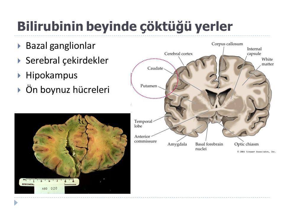 Bilirubinin beyinde çöktüğü yerler  Bazal ganglionlar  Serebral çekirdekler  Hipokampus  Ön boynuz hücreleri
