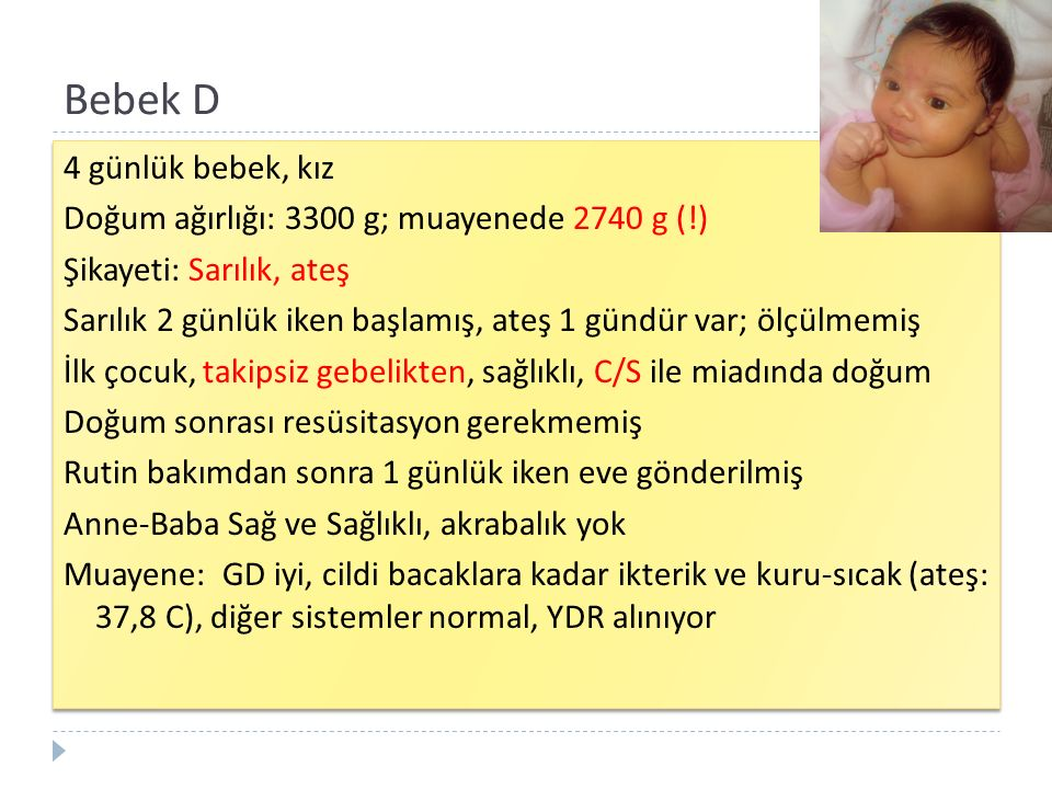 Bebek D 4 günlük bebek, kız Doğum ağırlığı: 3300 g; muayenede 2740 g (!) Şikayeti: Sarılık, ateş Sarılık 2 günlük iken başlamış, ateş 1 gündür var; öl