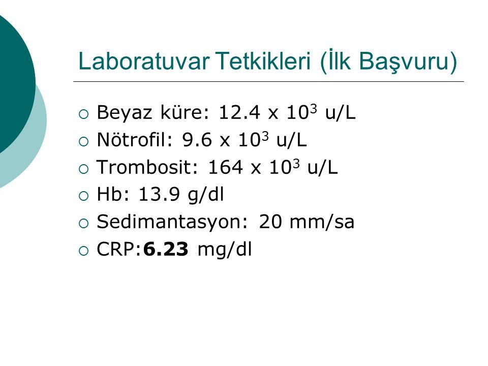 Laboratuvar Tetkikleri (İlk Başvuru)  Beyaz küre: 12.4 x 10 3 u/L  Nötrofil: 9.6 x 10 3 u/L  Trombosit: 164 x 10 3 u/L  Hb: 13.9 g/dl  Sedimantasyon: 20 mm/sa  CRP:6.23 mg/dl