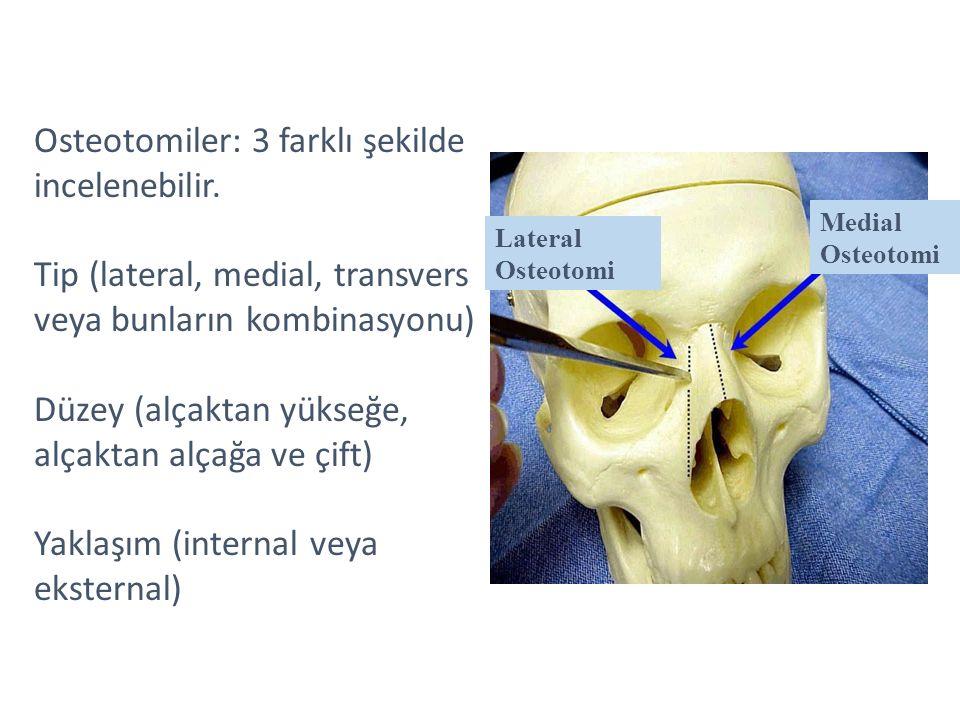 Osteotomiler: 3 farklı şekilde incelenebilir. Tip (lateral, medial, transvers veya bunların kombinasyonu) Düzey (alçaktan yükseğe, alçaktan alçağa ve
