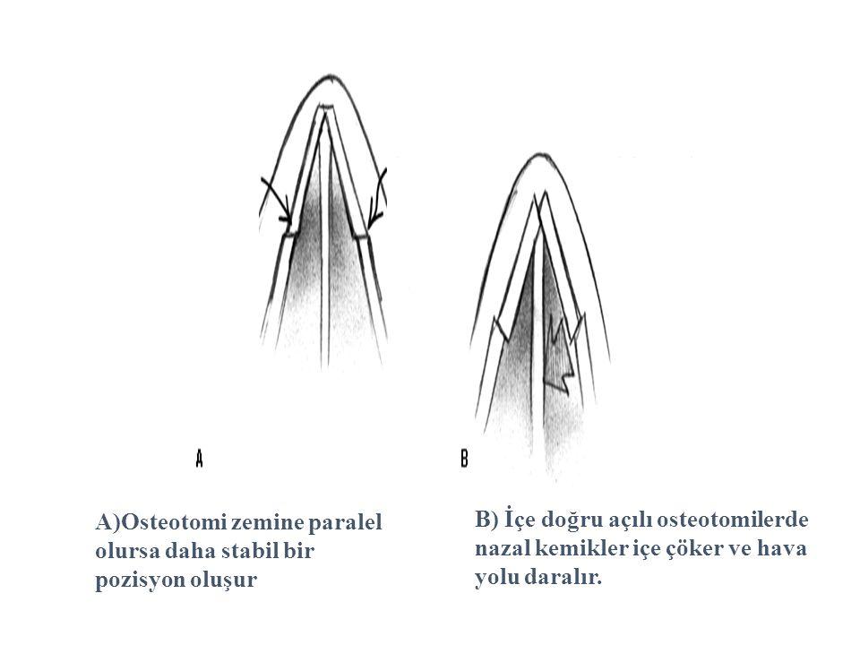 A)Osteotomi zemine paralel olursa daha stabil bir pozisyon oluşur B) İçe doğru açılı osteotomilerde nazal kemikler içe çöker ve hava yolu daralır.