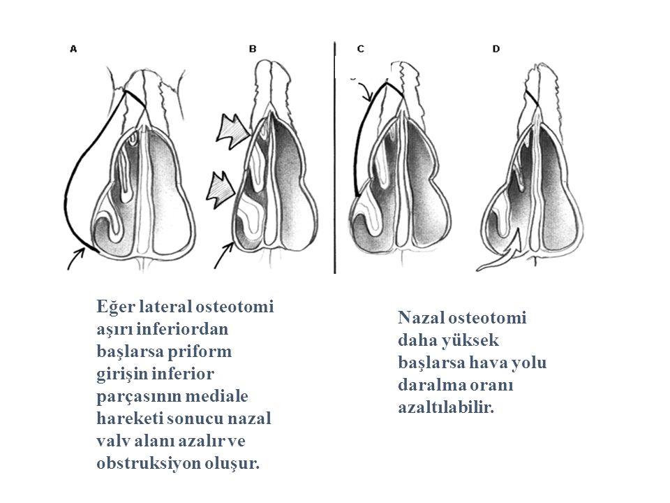 Eğer lateral osteotomi aşırı inferiordan başlarsa priform girişin inferior parçasının mediale hareketi sonucu nazal valv alanı azalır ve obstruksiyon