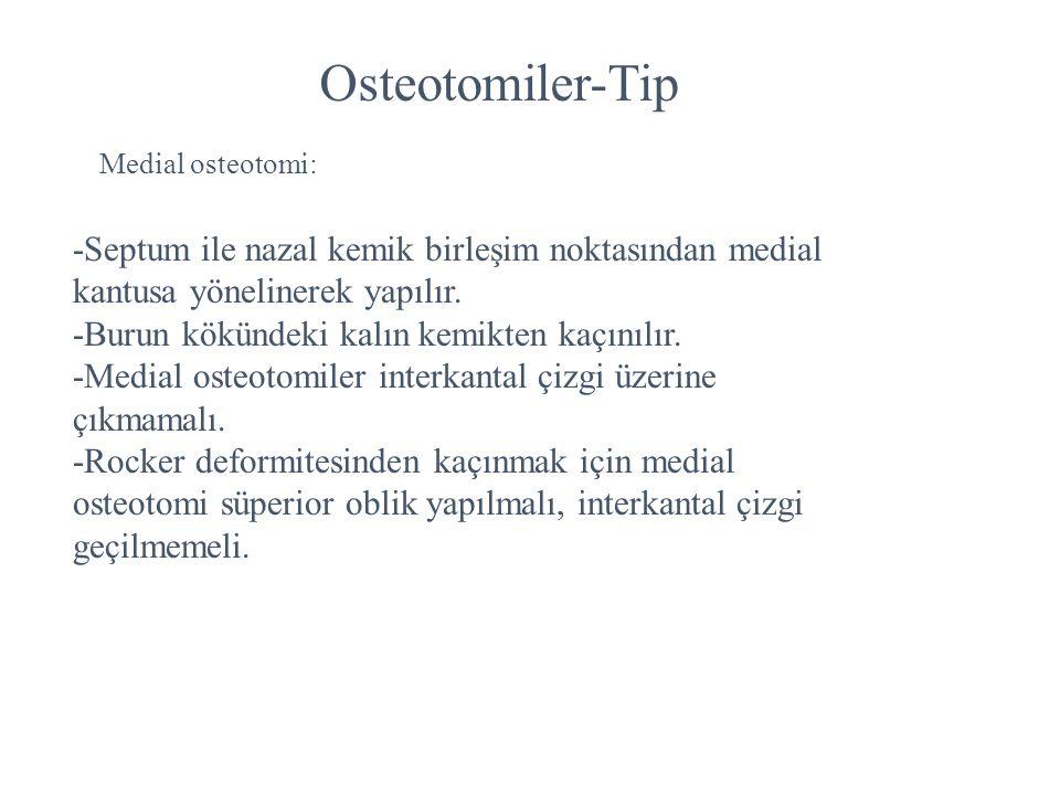 Osteotomiler-Tip Medial osteotomi: -Septum ile nazal kemik birleşim noktasından medial kantusa yönelinerek yapılır. -Burun kökündeki kalın kemikten ka