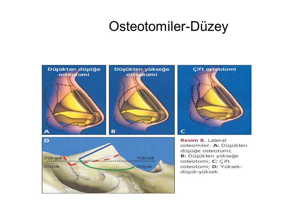 Osteotomiler-Düzey
