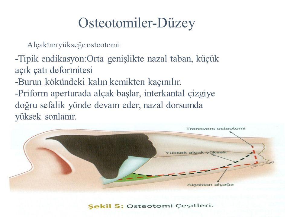 Alçaktan yükseğe osteotomi: -Tipik endikasyon:Orta genişlikte nazal taban, küçük açık çatı deformitesi -Burun kökündeki kalın kemikten kaçınılır. -Pri