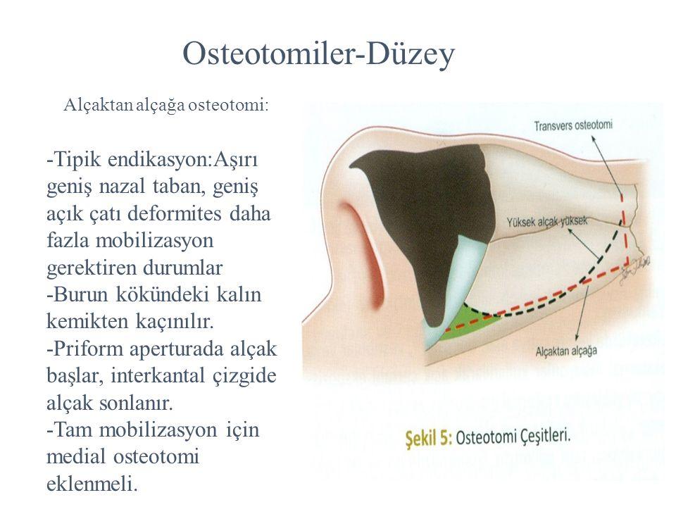 Osteotomiler-Düzey Alçaktan alçağa osteotomi: -Tipik endikasyon:Aşırı geniş nazal taban, geniş açık çatı deformites daha fazla mobilizasyon gerektiren