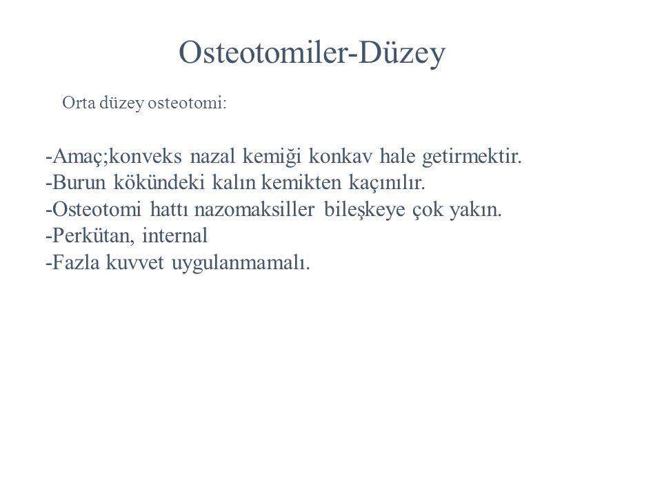 Osteotomiler-Düzey Orta düzey osteotomi: -Amaç;konveks nazal kemiği konkav hale getirmektir. -Burun kökündeki kalın kemikten kaçınılır. -Osteotomi hat