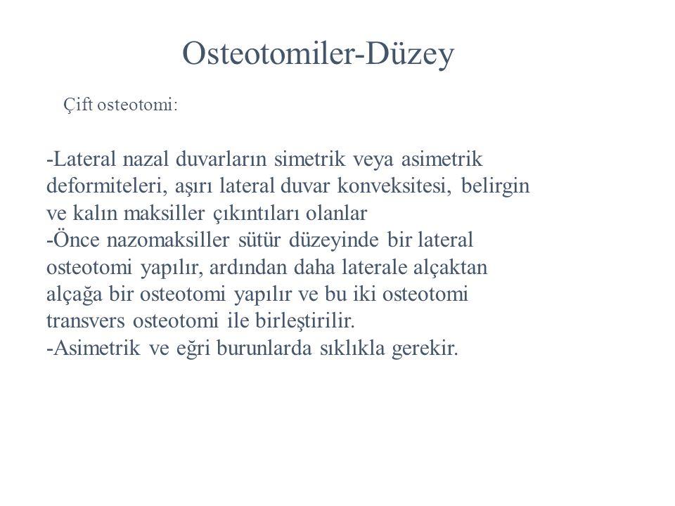 Osteotomiler-Düzey Çift osteotomi: -Lateral nazal duvarların simetrik veya asimetrik deformiteleri, aşırı lateral duvar konveksitesi, belirgin ve kalı