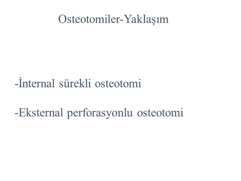 Osteotomiler-Yaklaşım -İnternal sürekli osteotomi -Eksternal perforasyonlu osteotomi