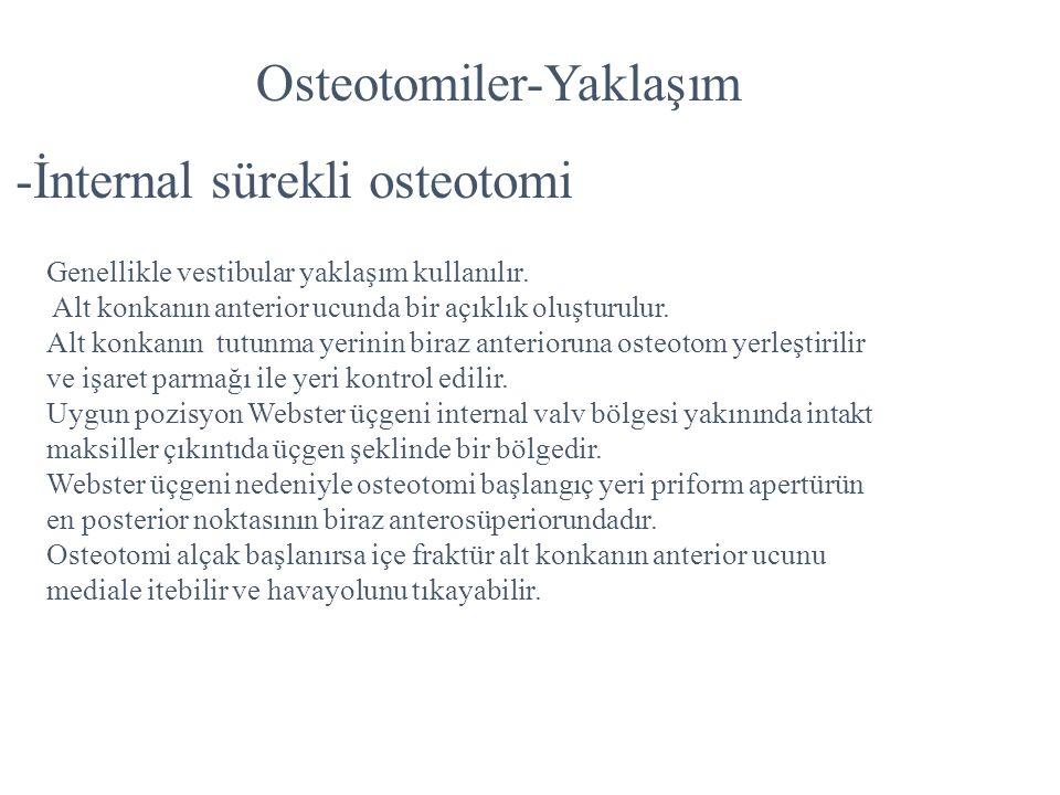 Osteotomiler-Yaklaşım -İnternal sürekli osteotomi Genellikle vestibular yaklaşım kullanılır. Alt konkanın anterior ucunda bir açıklık oluşturulur. Alt