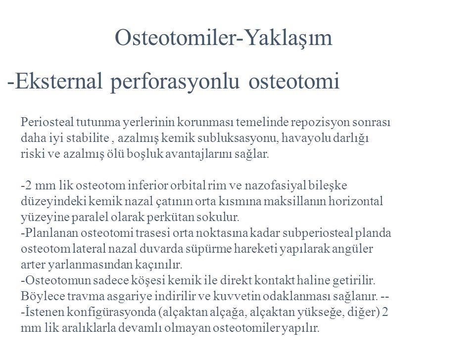 Osteotomiler-Yaklaşım -Eksternal perforasyonlu osteotomi Periosteal tutunma yerlerinin korunması temelinde repozisyon sonrası daha iyi stabilite, azal