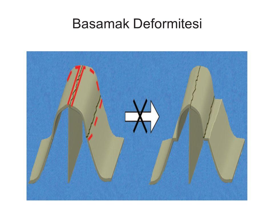 Basamak Deformitesi