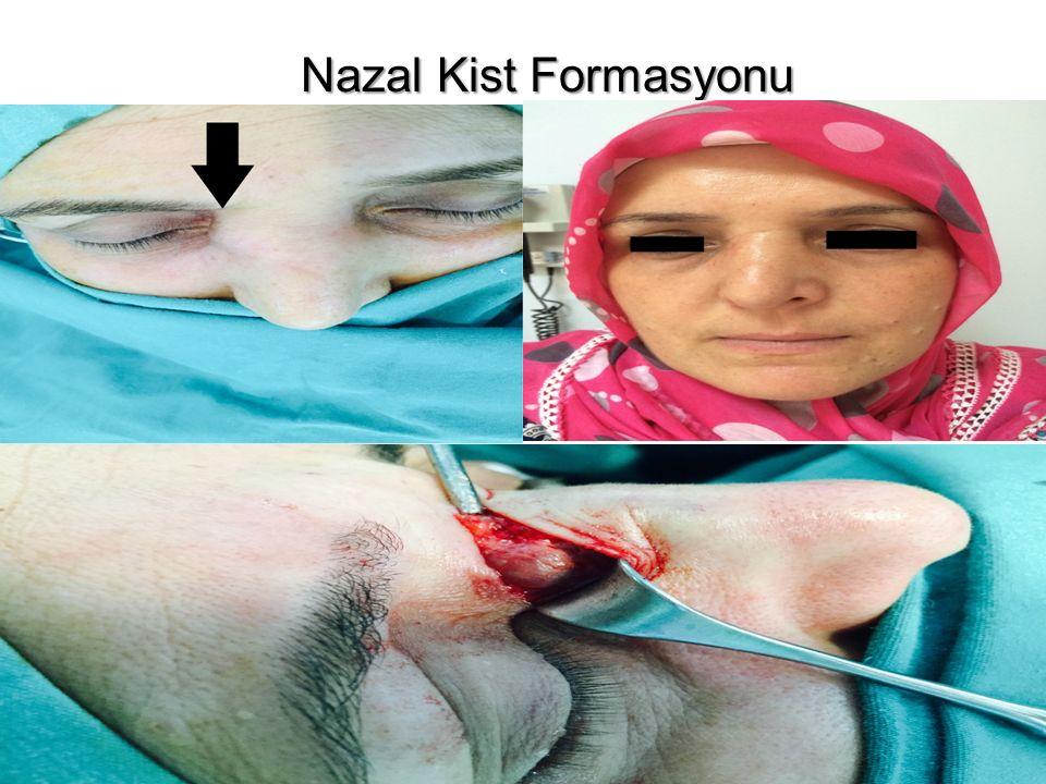 Nazal Kist Formasyonu