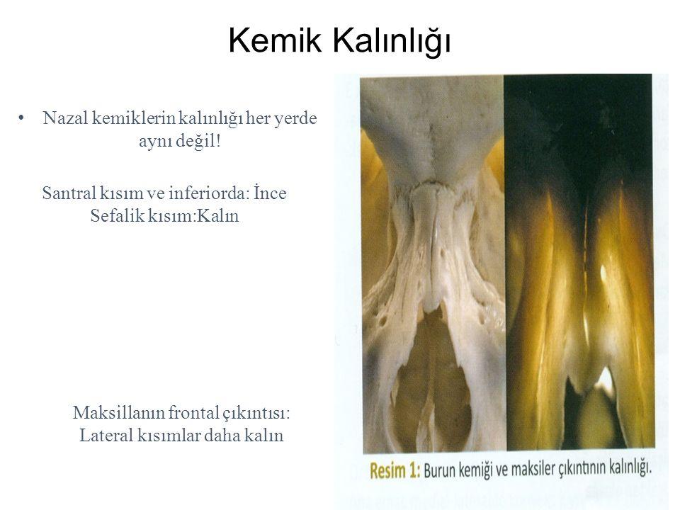 Kemik Kalınlığı Nazal kemiklerin kalınlığı her yerde aynı değil! Santral kısım ve inferiorda: İnce Sefalik kısım:Kalın Maksillanın frontal çıkıntısı: