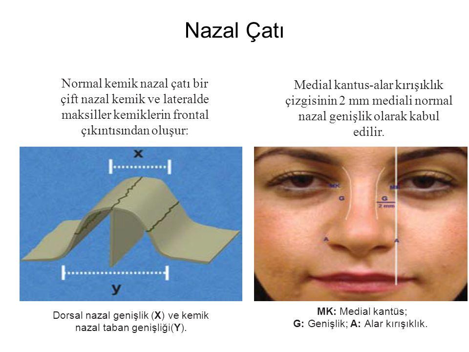Nazal Çatı Dorsal nazal genişlik (X) ve kemik nazal taban genişliği(Y). MK: Medial kantüs; G: Genişlik; A: Alar kırışıklık. Normal kemik nazal çatı bi
