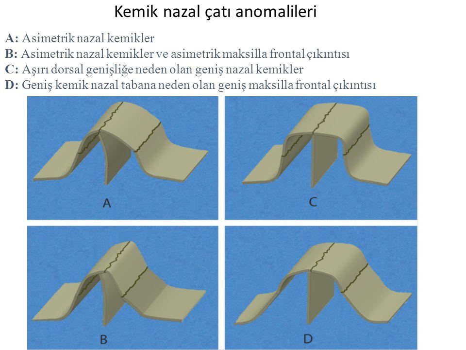 Kemik nazal çatı anomalileri A: Asimetrik nazal kemikler B: Asimetrik nazal kemikler ve asimetrik maksilla frontal çıkıntısı C: Aşırı dorsal genişliğe