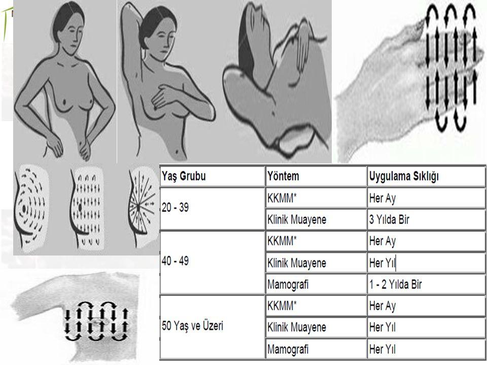 Serviks (rahim ağzı) Kanser Taraması Kadın kanserleri arasında Dünya da ikinci sırada yer alan serviks kanserinin rahim ağzından sürüntü testi ile erken tanısı konulabilmektedir Cinsel aktivite başladıktan sonra 2-3 yıl içinde 30 yaşından itibaren her kadının 5 yılda bir yaptıracağı pap-smear (sürüntü) testi ile bu kanser teşhis edilmektedir