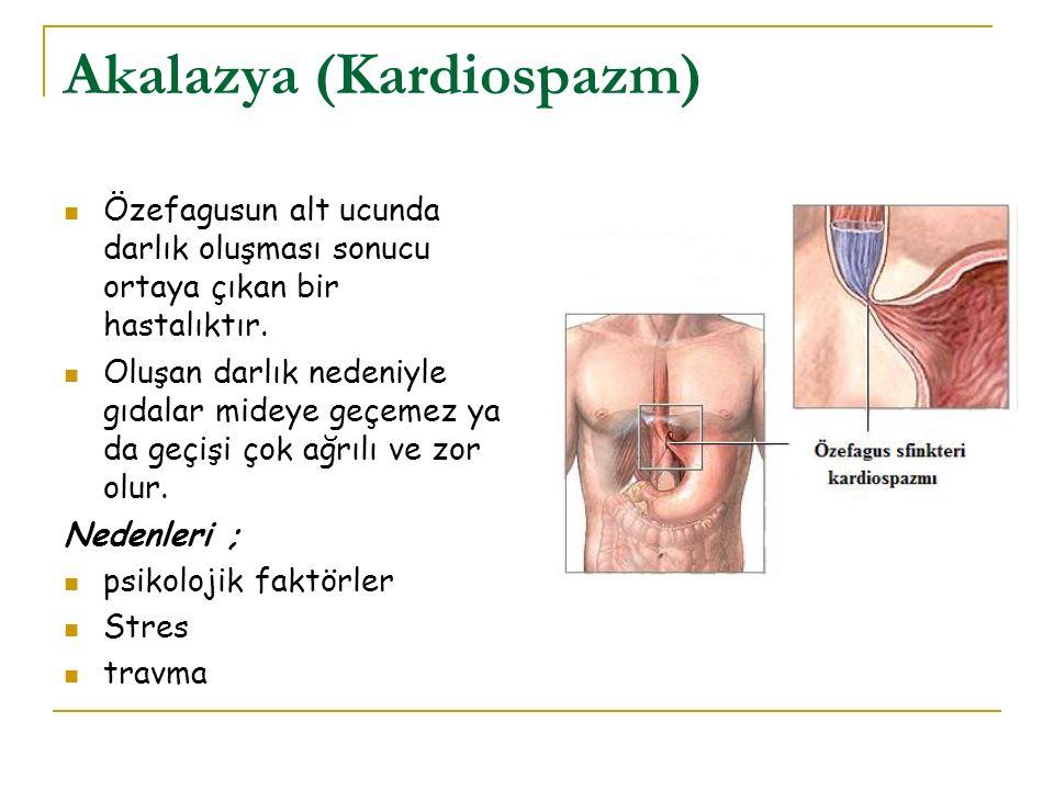 Akalazya (Kardiospazm) Özefagusun alt ucunda darlık oluşması sonucu ortaya çıkan bir hastalıktır. Oluşan darlık nedeniyle gıdalar mideye geçemez ya da