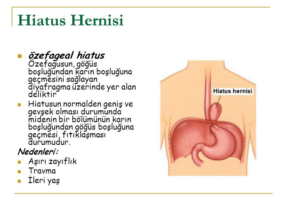 Hiatus Hernisi özefageal hiatus Özefagusun, göğüs boşluğundan karın boşluğuna geçmesini sağlayan diyafragma üzerinde yer alan deliktir Hiatusun normal