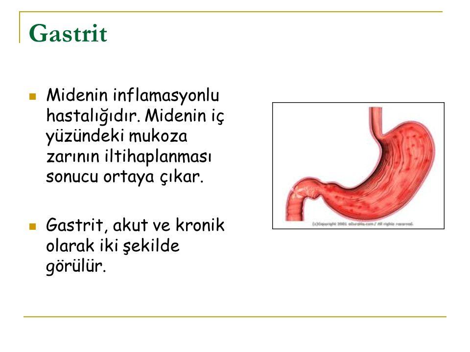 Gastrit Midenin inflamasyonlu hastalığıdır. Midenin iç yüzündeki mukoza zarının iltihaplanması sonucu ortaya çıkar. Gastrit, akut ve kronik olarak iki