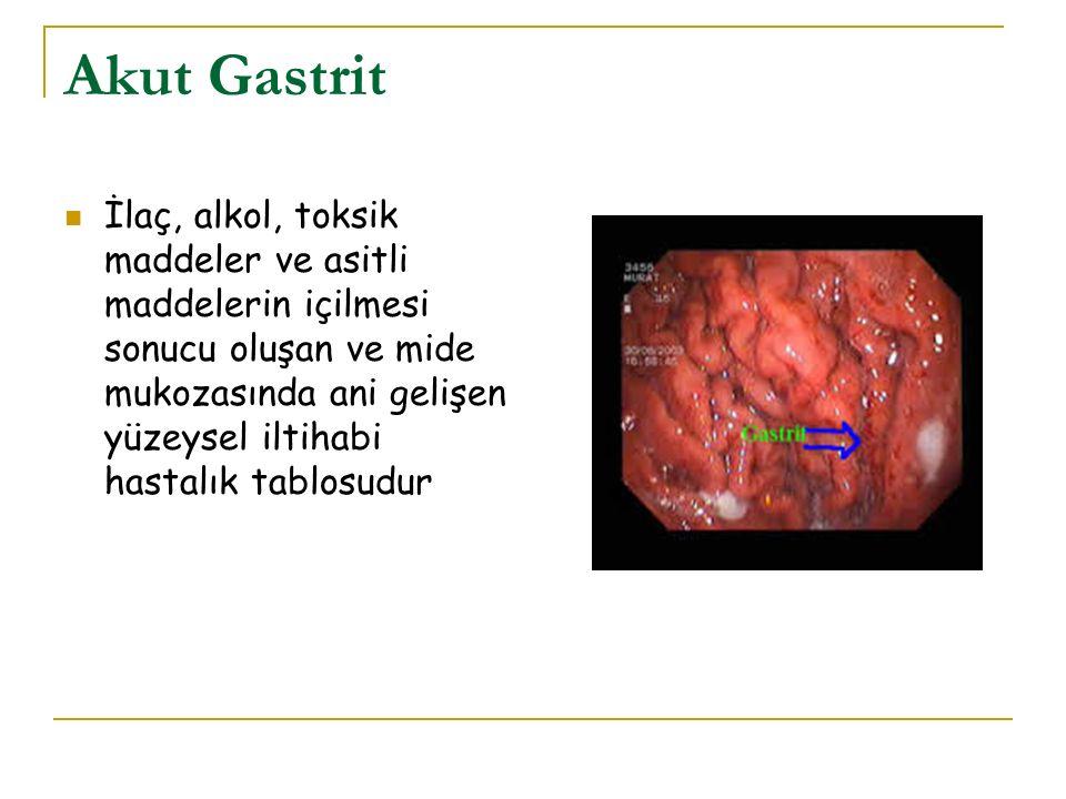 Akut Gastrit İlaç, alkol, toksik maddeler ve asitli maddelerin içilmesi sonucu oluşan ve mide mukozasında ani gelişen yüzeysel iltihabi hastalık tablo