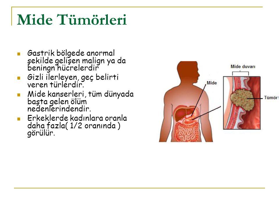 Mide Tümörleri Gastrik bölgede anormal şekilde gelişen malign ya da beningn hücrelerdir Gizli ilerleyen, geç belirti veren türlerdir. Mide kanserleri,