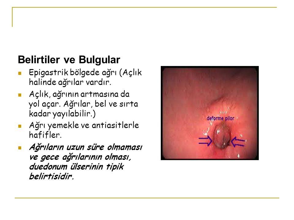 Belirtiler ve Bulgular Epigastrik bölgede ağrı (Açlık halinde ağrılar vardır. Açlık, ağrının artmasına da yol açar. Ağrılar, bel ve sırta kadar yayıla